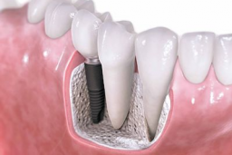 Implantology Consultation