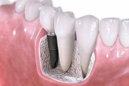 Implantology Consultation