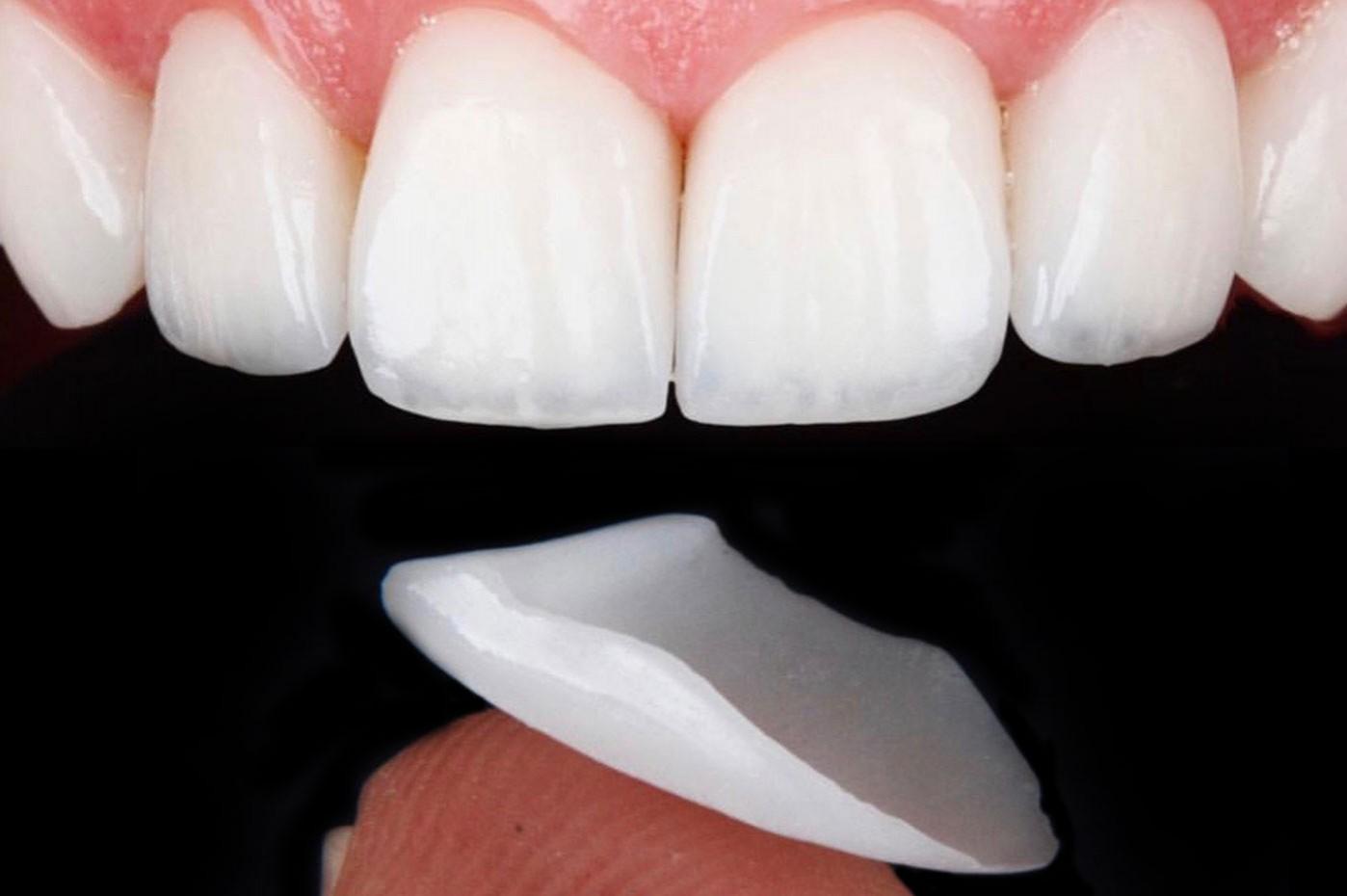 Faccette dentali (Veneers)
