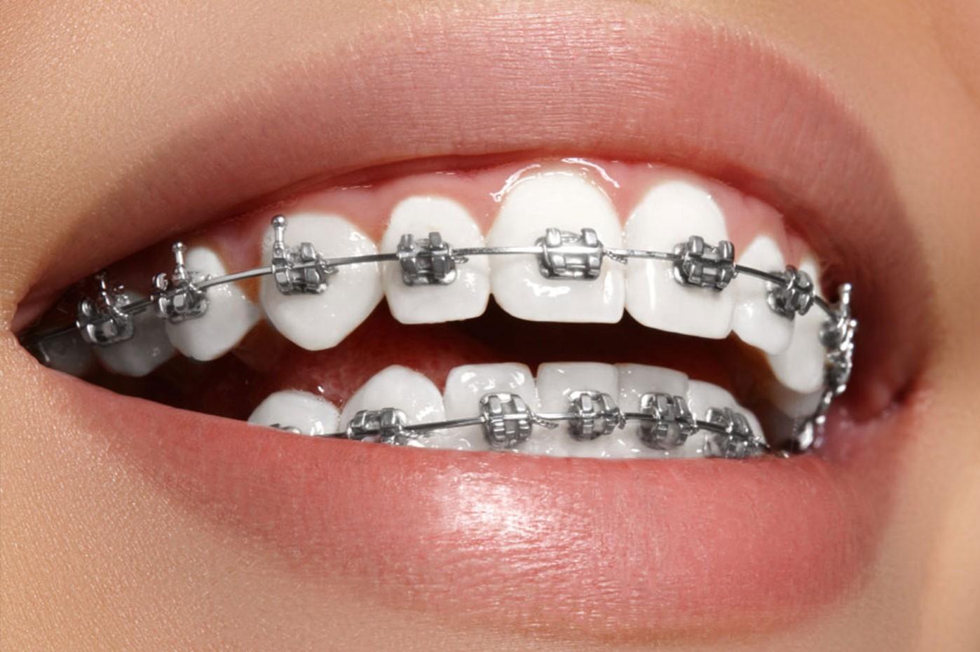 Ortodonzia Dentale