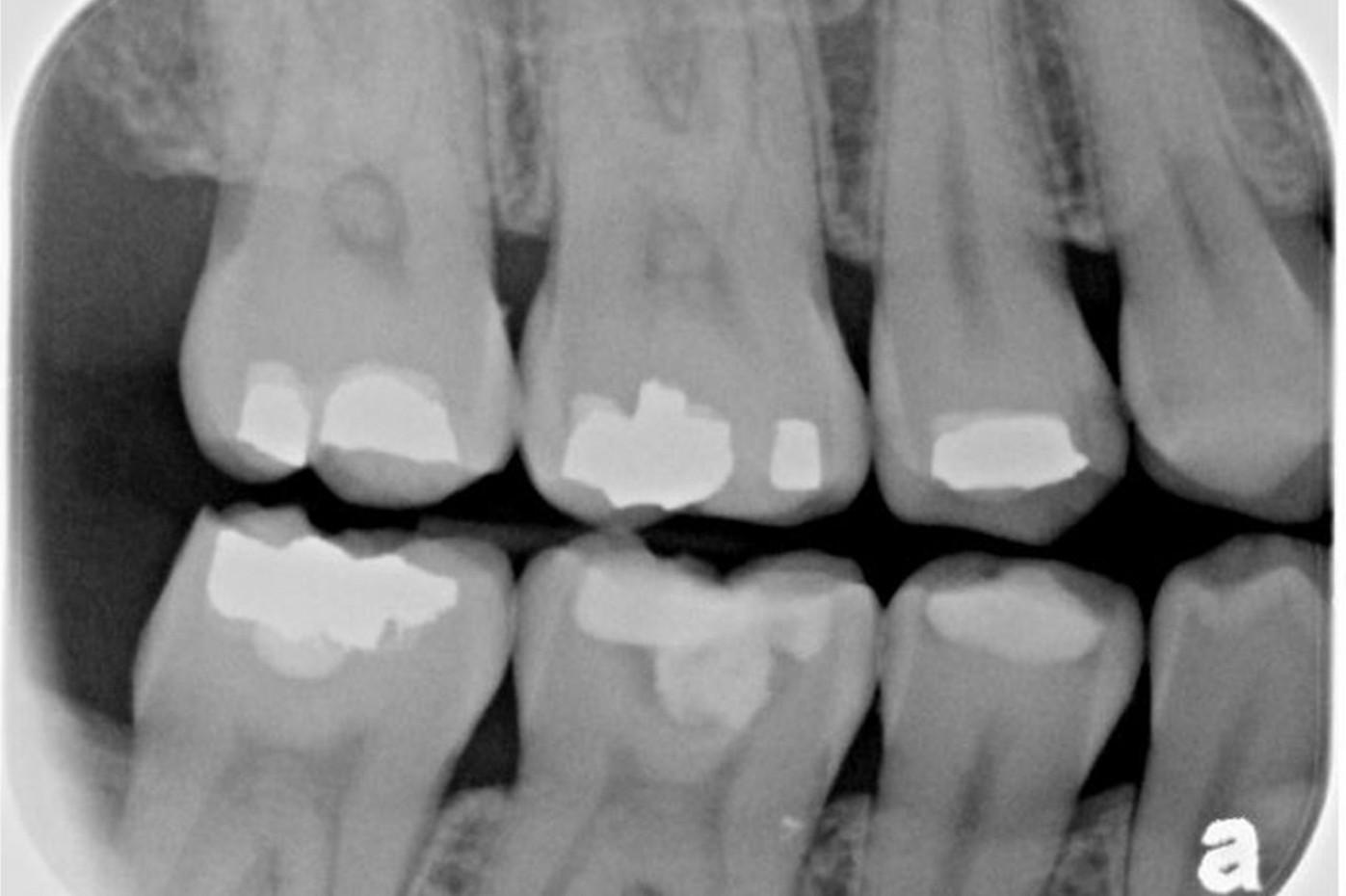 Radiografia Endorale